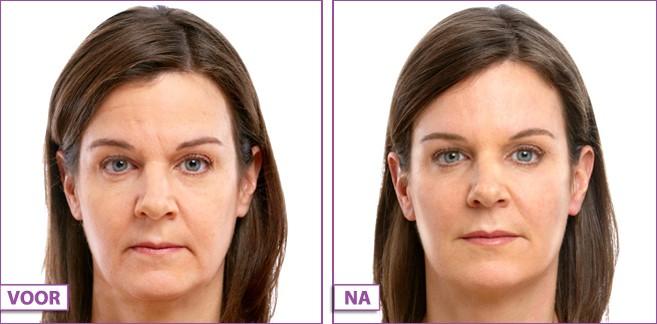 dermatoloog acne ervaringen